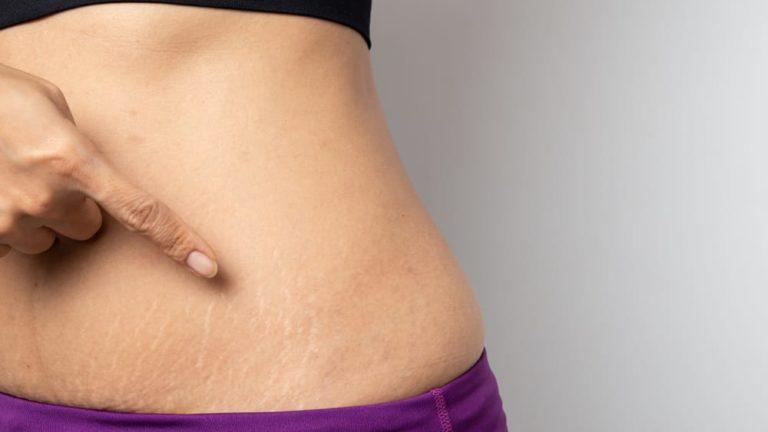 3 อาหารช่วยลดรอยท้องแตก หลังการตั้งครรภ์ ของคุณแม่